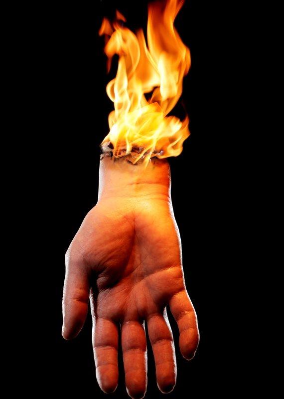 יד נשרפת