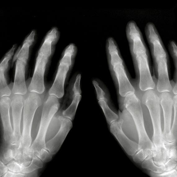 כאבים במפרקי הידיים