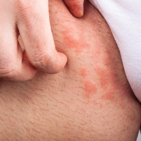 התזונה יכולה להועיל לפסוריאזיס?