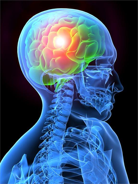 כאב ראש