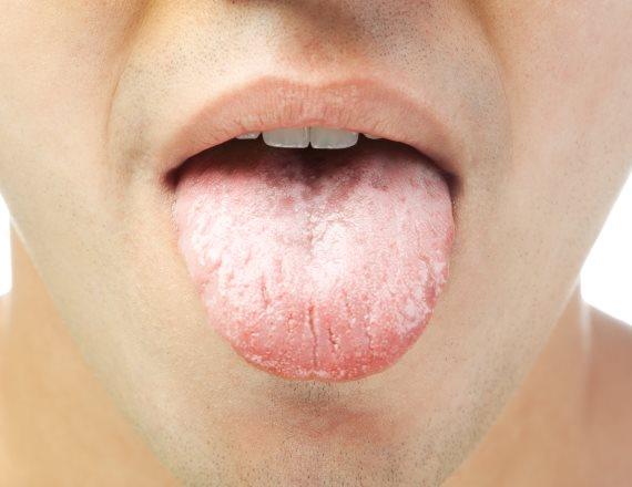 פצעים בפה