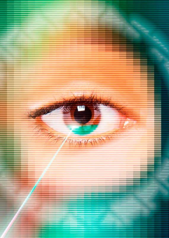 עין בעלת קשתית כללית