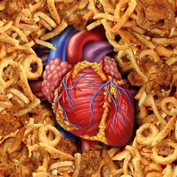 """""""יש קשר בין תזונה בריאה לבריאות כלי הדם"""""""