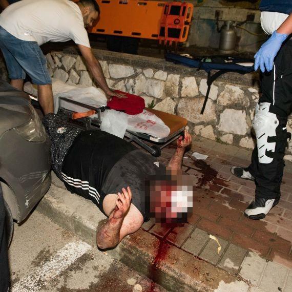 פצוע מהמהומות בעכו (ארכיון, למצולמים אין קשר לכתבה)