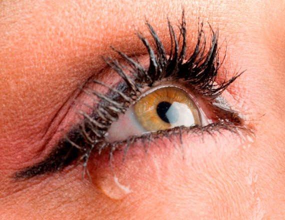 יובש קיצוני בעיניים