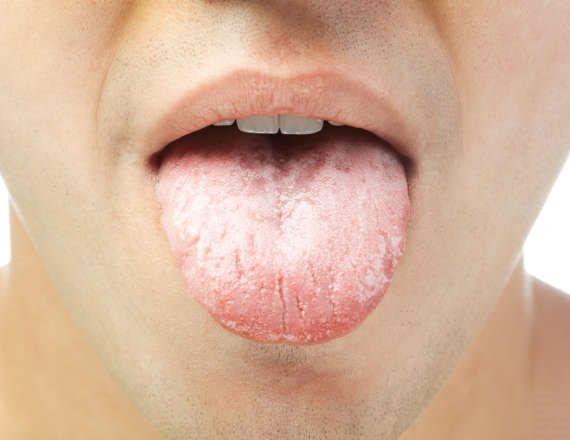 הלשון משותקת